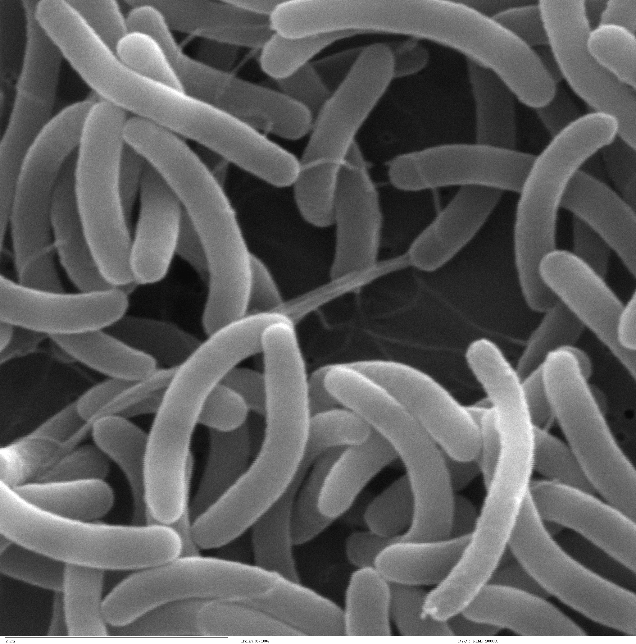 Cholera Microscopic Diagram Wiring Master Blogs Microscope Outbreak Hits Three Lgas In Lagos State And Leave Germ Microbe